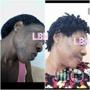 Treatment Of Acne | Health & Beauty Services for sale in Rivers State, Port-Harcourt