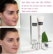 O'Chelli Acne Removal Fast Action Cream | Skin Care for sale in Abuja (FCT) State, Kubwa