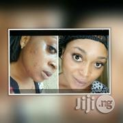 Clear Pimples, Acne and Dark Spots | Skin Care for sale in Rivers State, Eleme