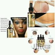 Lavender Oil For Scar And Stretch Marks Removal | Skin Care for sale in Lagos State, Amuwo-Odofin