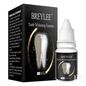 Teeth Whitening Essence Removes Plaque And Stain On The Teeth