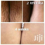 Stretch Marks Cream | Skin Care for sale in Lagos State, Alimosho