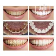 7 Days Teeth Whitening Serum | Tools & Accessories for sale in Lagos State, Isolo