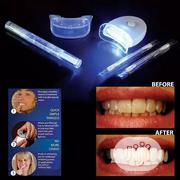 20minutes Teeth Whitening Kit | Tools & Accessories for sale in Lagos State, Surulere