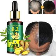 Hair And Beard Growth Oil | Hair Beauty for sale in Lagos State, Lagos Mainland
