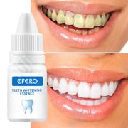 Natural Teeth Whitening Gel | Tools & Accessories for sale in Lagos State, Ikeja