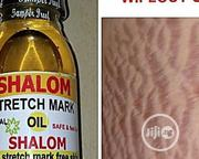 Shalom 14 Days Stretch Mark Wipeout Oil | Skin Care for sale in Lagos State, Lagos Mainland