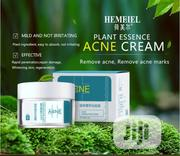 HEMEIEL Acne Treatment Face Cream | Skin Care for sale in Lagos State, Agege