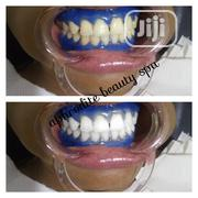 Advanced Lacer Teeth Whitening | Bath & Body for sale in Rivers State, Port-Harcourt