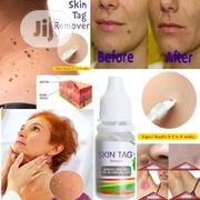 Skin Tag, Warts And Foot Corn Remover | Skin Care for sale in Lagos State, Surulere