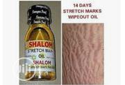 SHALOM Stretch Oil | Skin Care for sale in Lagos State, Lagos Island
