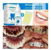 Teeth Whitening Essence | Skin Care for sale in Delta State, Sapele