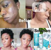 Pureskin Face Lotion | Skin Care for sale in Lagos State, Alimosho