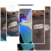50% OFF Laser Teeth Whitening! | Health & Beauty Services for sale in Lagos State, Ajah