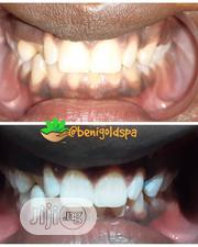 Teeth Whitening Session | Health & Beauty Services for sale in Lagos State, Victoria Island