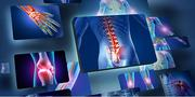 Joint Pain, Arthritis and Rheumatism | Vitamins & Supplements for sale in Abuja (FCT) State, Garki 1