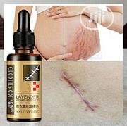Lavender Stretch Marks And Scar Removal | Skin Care for sale in Lagos State, Ikeja
