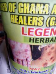 Sexual Transmitted And Skin Disease   Sexual Wellness for sale in Lagos State, Lagos Mainland