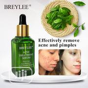 Acne Treatment Serum Natural Essence For Acne Scar Pimples   Skin Care for sale in Lagos State, Ikeja