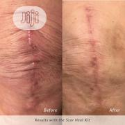 Strataderm Gel: Scar Removal. For Old And New Scar   Skin Care for sale in Lagos State, Ibeju