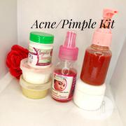 Acne/Pimple Kit | Skin Care for sale in Lagos State, Alimosho