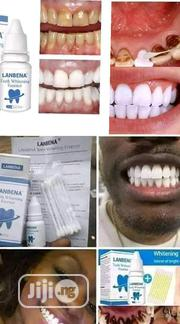 Labena Teeth Whitening | Vitamins & Supplements for sale in Abuja (FCT) State, Karu