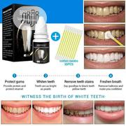 Teeth Whitening Essence | Skin Care for sale in Lagos State, Ipaja