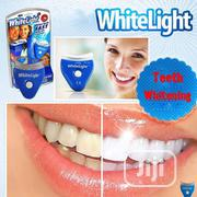 Advanced Lacer Teeth Whitening | Bath & Body for sale in Lagos State, Surulere