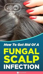 Get Cleared From Dandruff And Other Anti Fungal. | Hair Beauty for sale in Lagos State, Ojodu