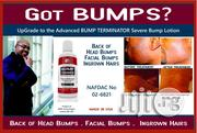 Bump Terminator- Anti Bump Lotion- 120ml | Bath & Body for sale in Lagos State, Ikeja
